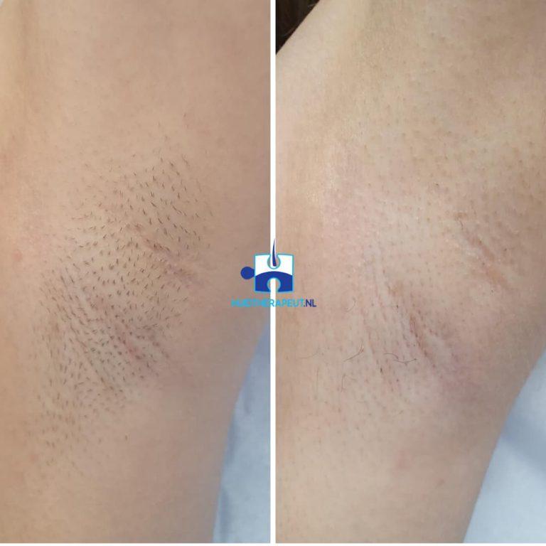 Behandelingen Laserontharing Oksel Voor-Na